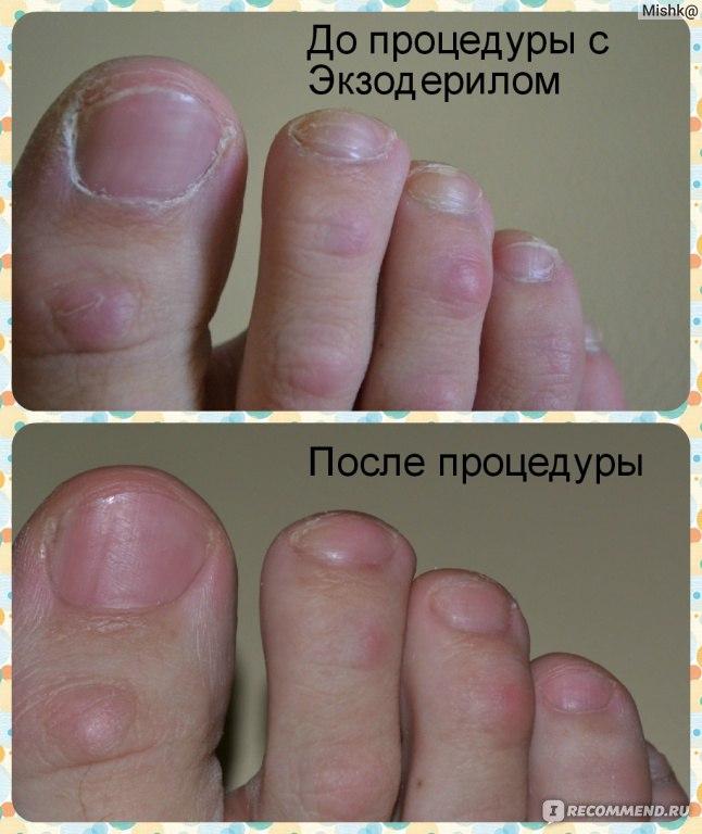 Какой грибок ногтей на ногах