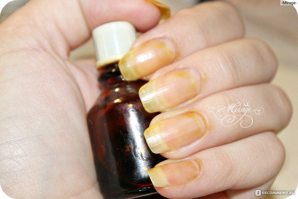 Чем укреплять ногти в домашних условиях йодом 865