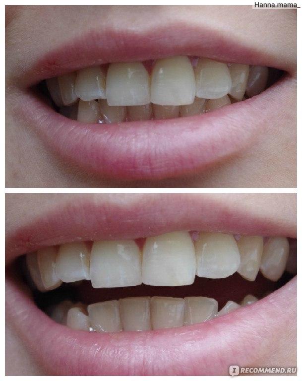 Отбеливание зубов волгоград отзывы