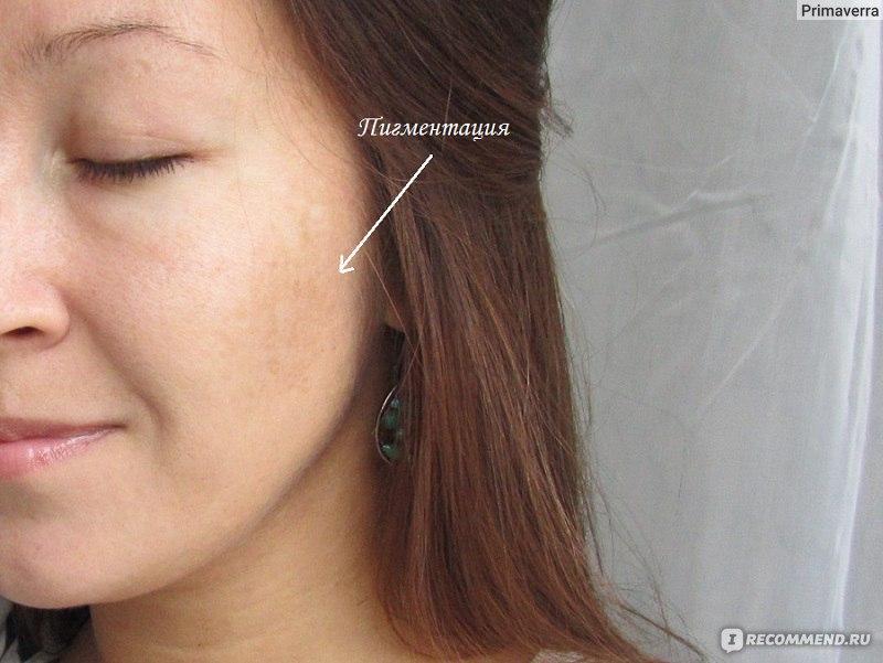 Врожденная пигментация на коже