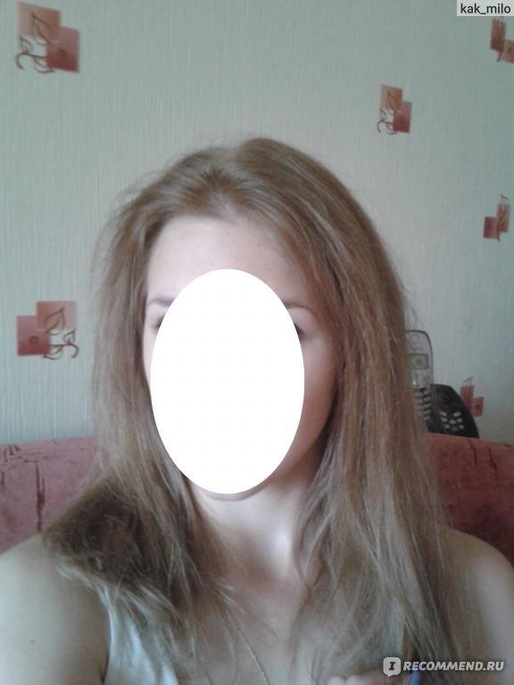 тяжелые волосы выпадение