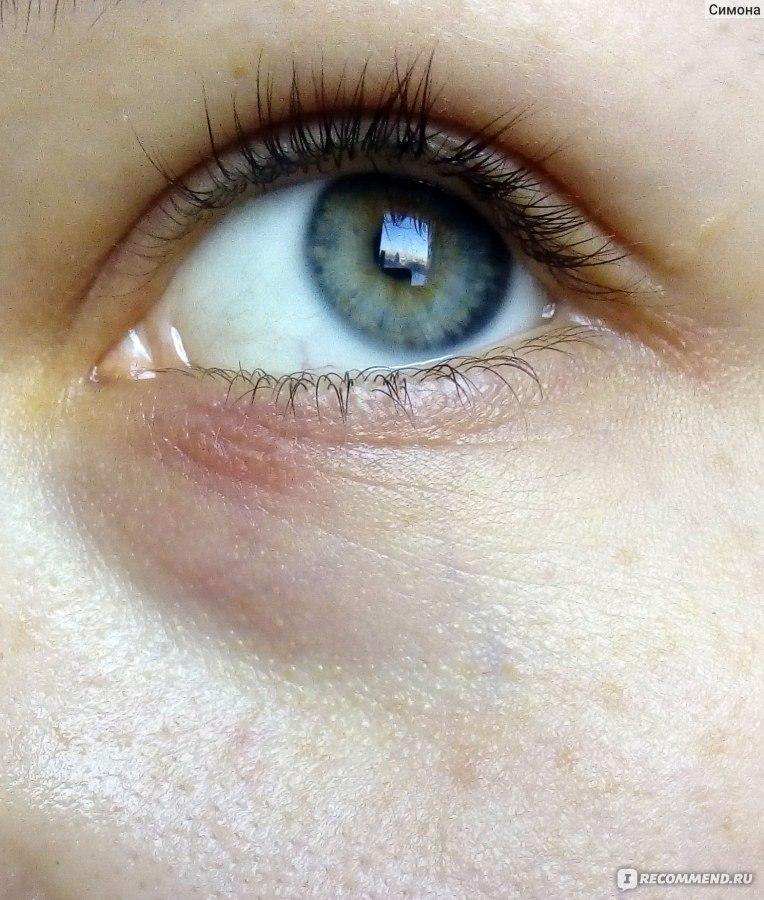 Гель для кожи вокруг глаз от темных кругов и мешков teana отзывы