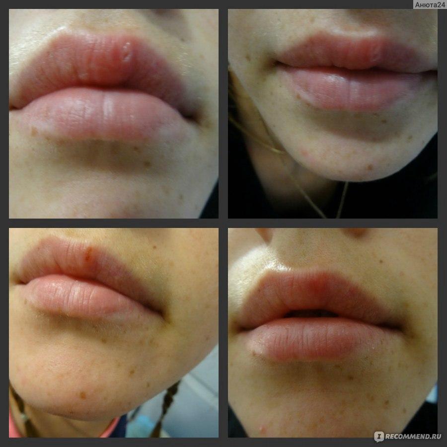 Как быстро залечить рану на губе