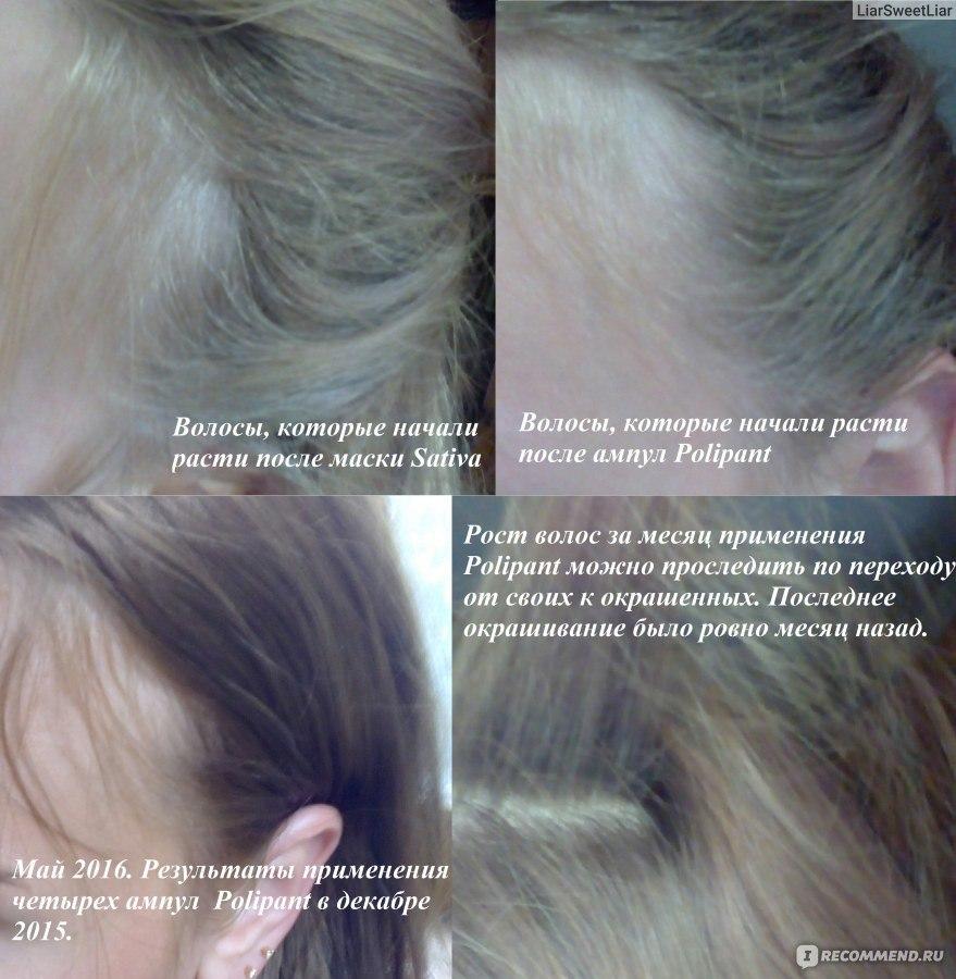 как пользоваться ампулами для волос