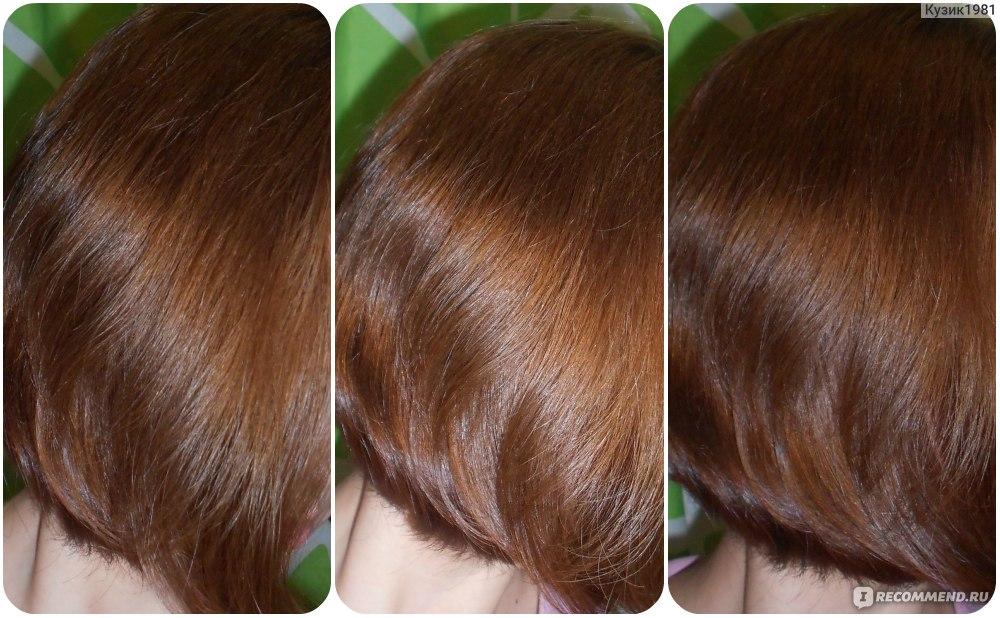 Алерана спрей против выпадения волос отзывы