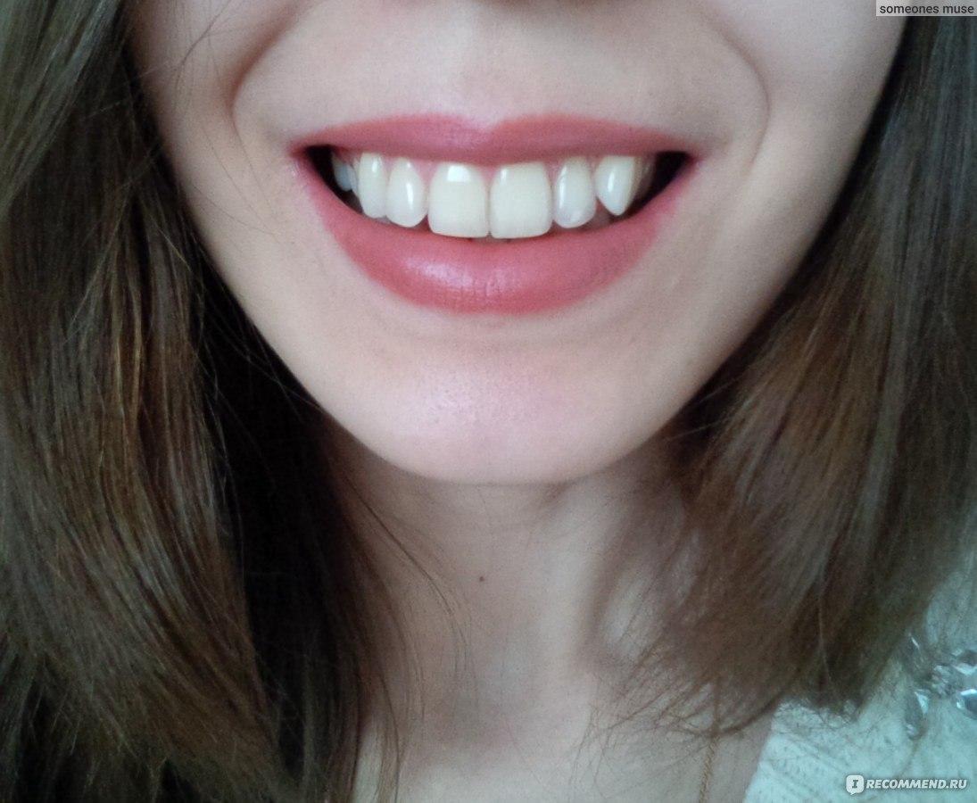 отбеливание зубов на фото онлайн бесплатно