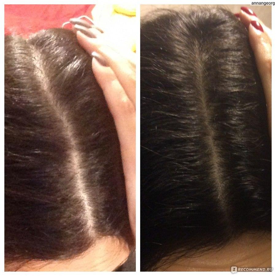 Очень сильно выпадают волосы когда их моешь