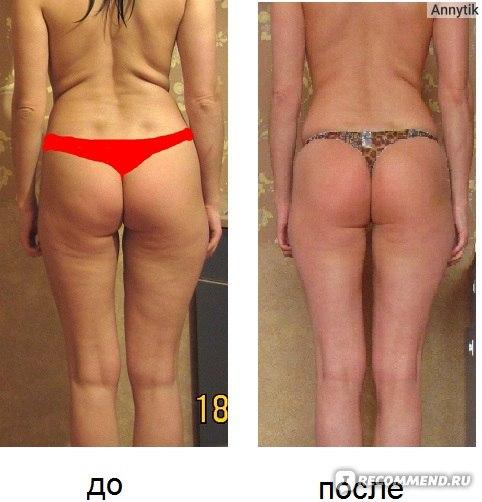 Можно ли похудеть при помощи массажа