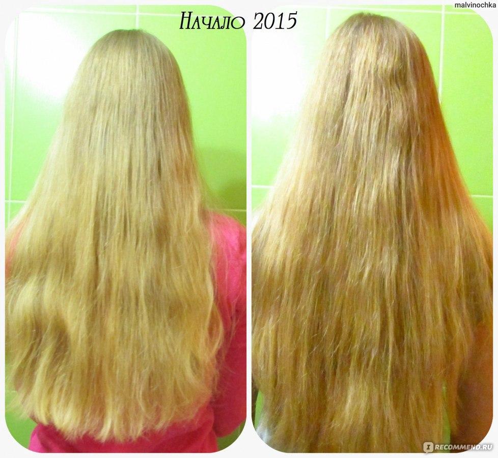 Чем отрастить волосы в домашних условиях 97
