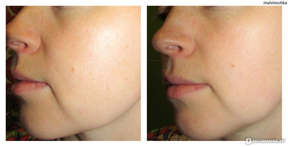как удалить жирный блеск с лица
