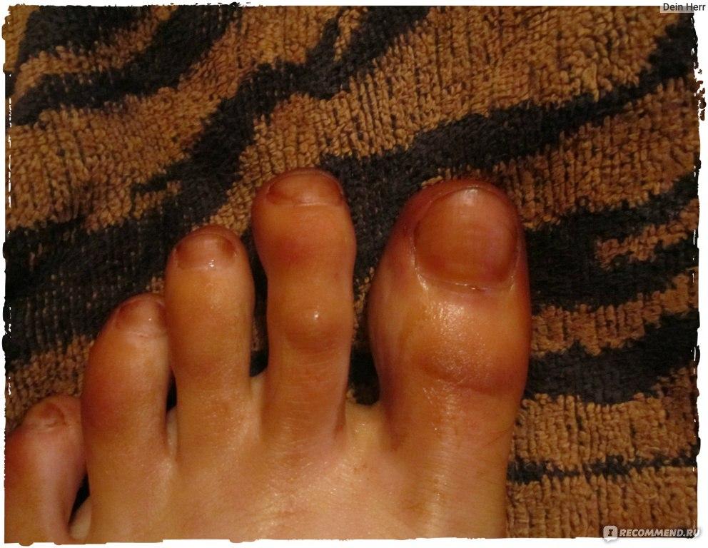 Почему желтеют пальцы на ногах