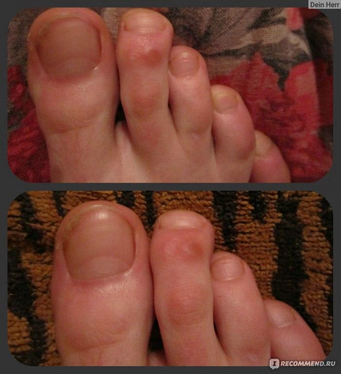Педикюр на грибковые ногти в минске