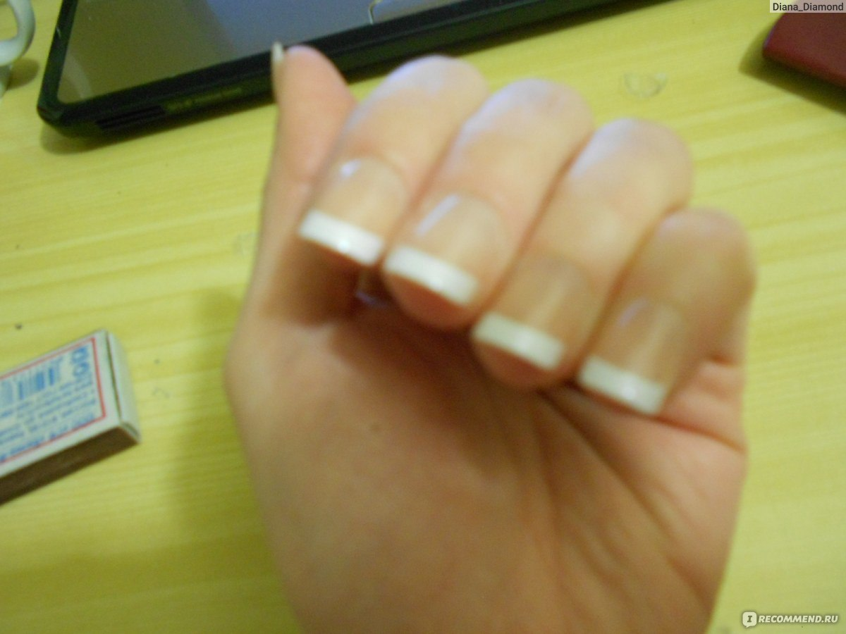 Накладные ногти последствия фото