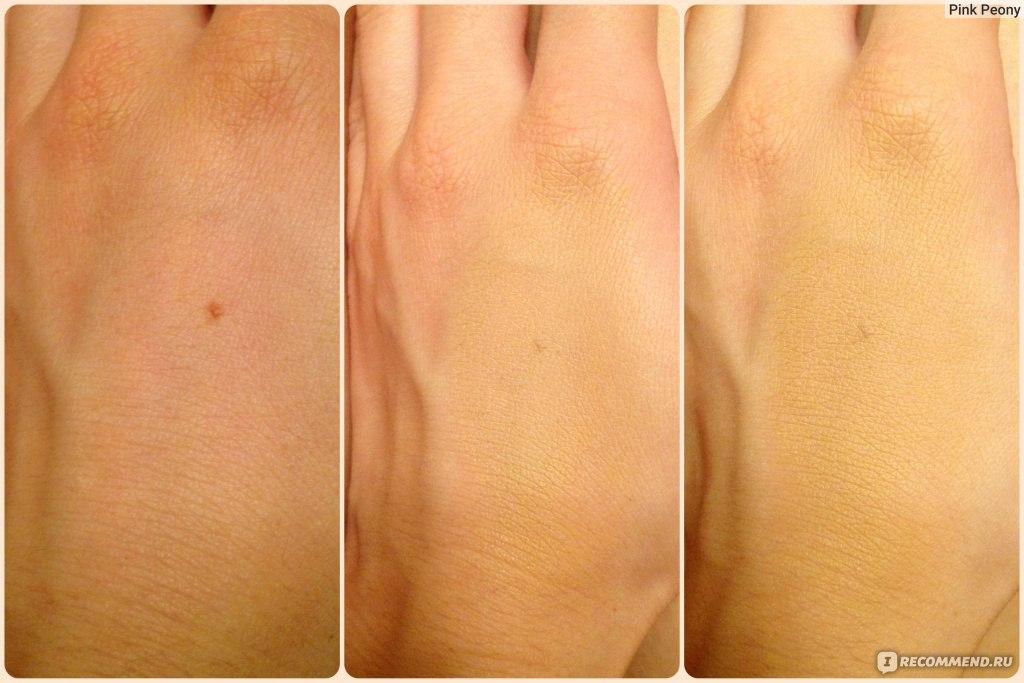 Как сделать свою кожу тела идеальной