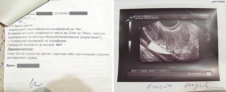 Лапароскопия кисты яичника во время беременности отзывы