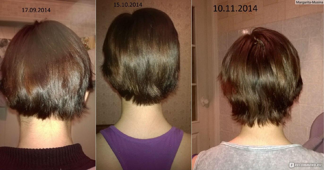Как отрастить волосы из стрижки под мальчика