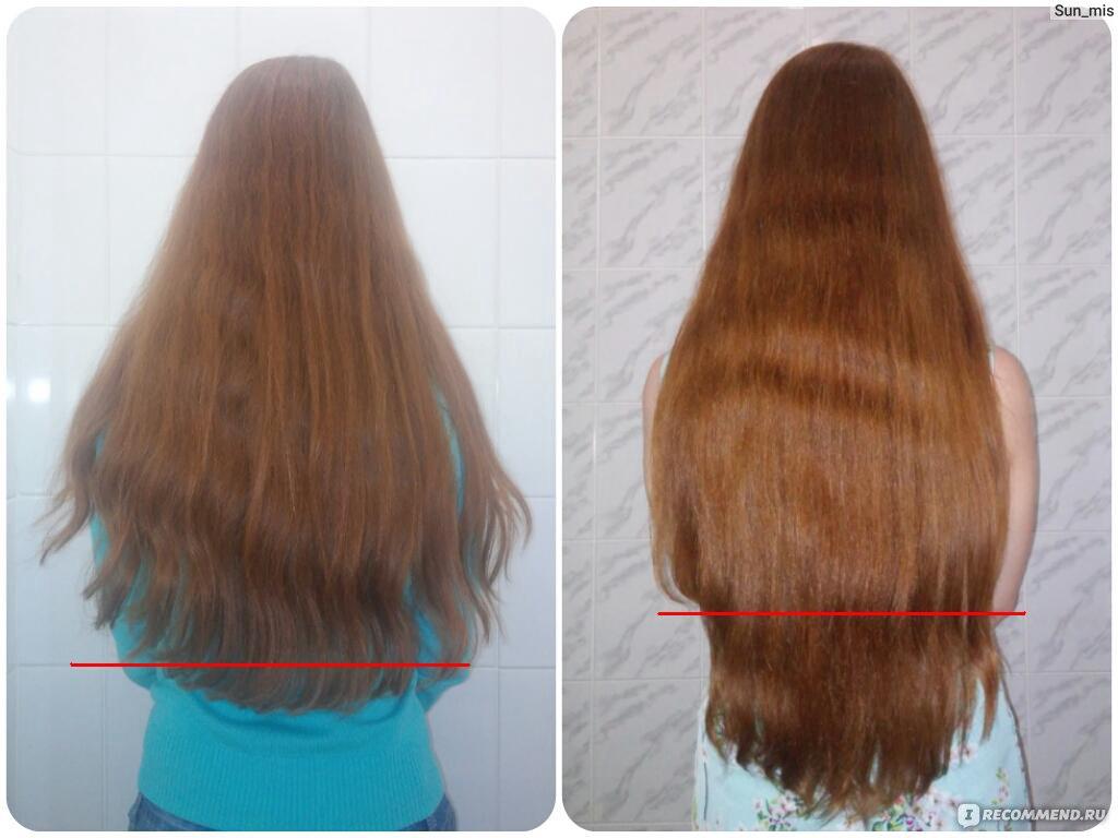 Как отрасти волос в домашних условиях 863