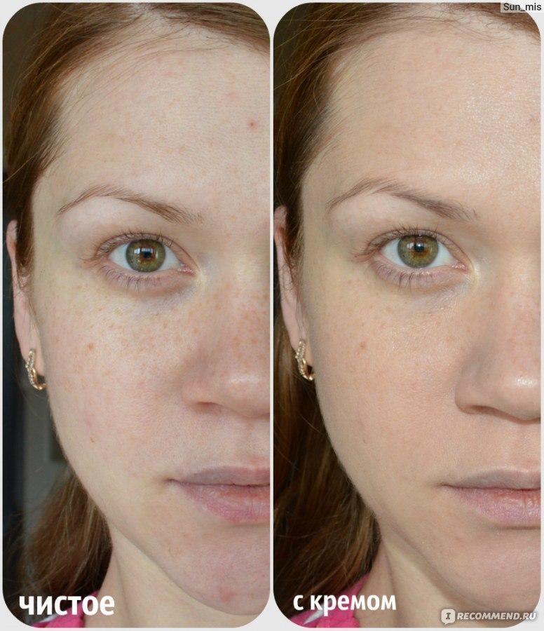 Боремся с веснушками на лице