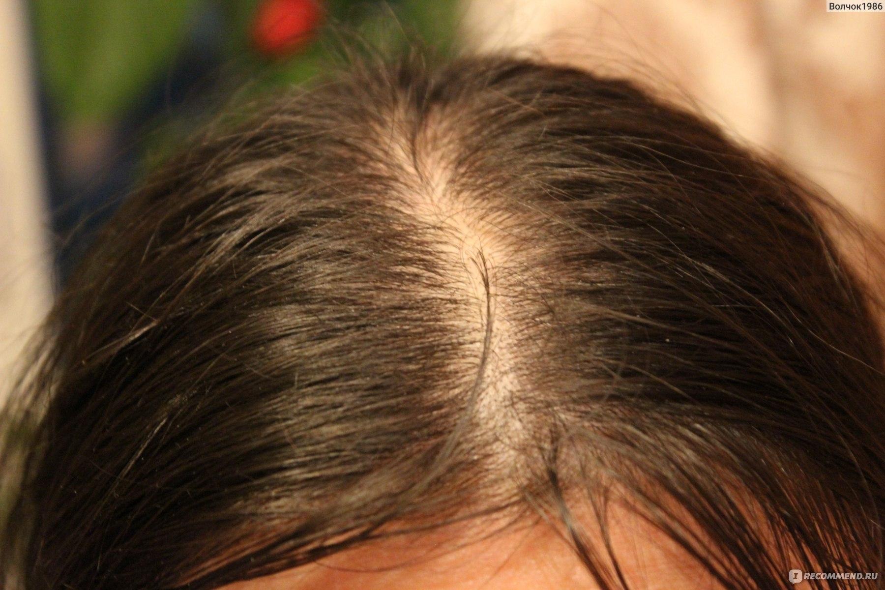 Выпадают волосы при мытье головы причины