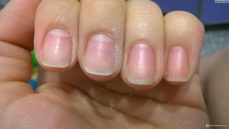 Как укрепить ногти на руках в 10