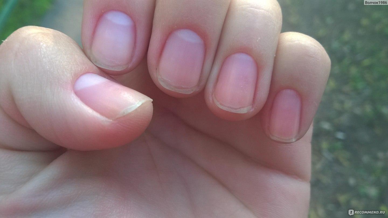 Пустота ногтей на руках фото