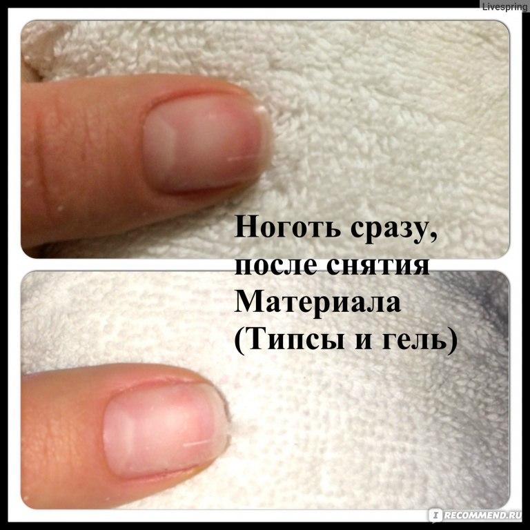 Почему ногти болят после гель лака