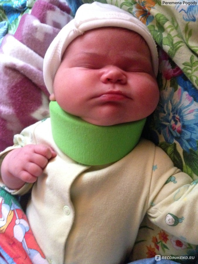 Воротник шанца для новорожденных сколько носить
