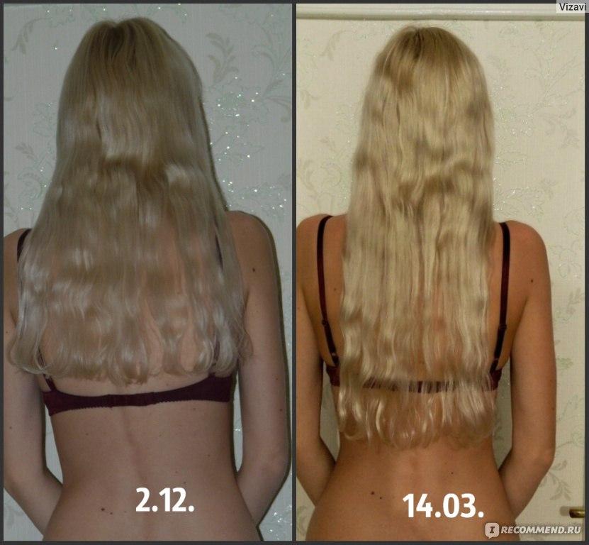 Средство от выпадения и восстановления волос