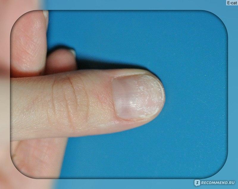 Как избавиться от грибка на ногтях у рук