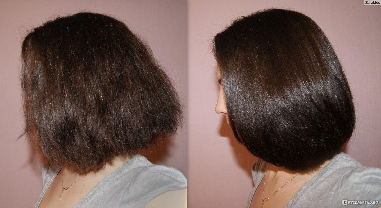 Берлускони до и после пересадки волос