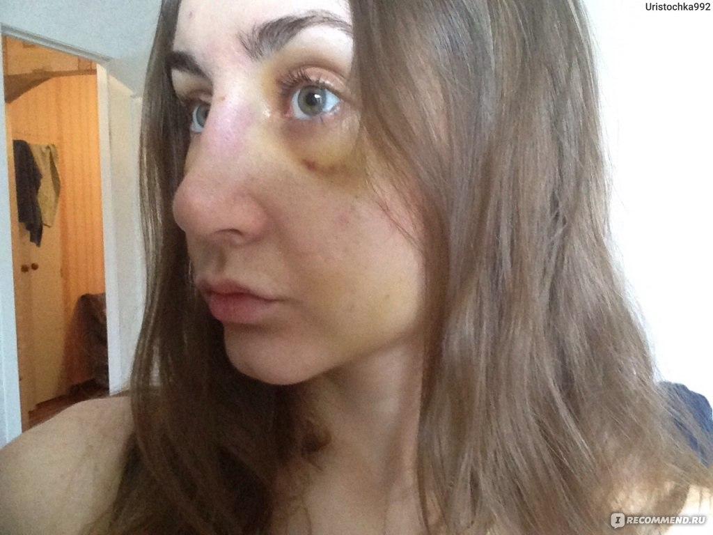 Ринопластика  Пластика носа  Я делала ринопластику! Мой