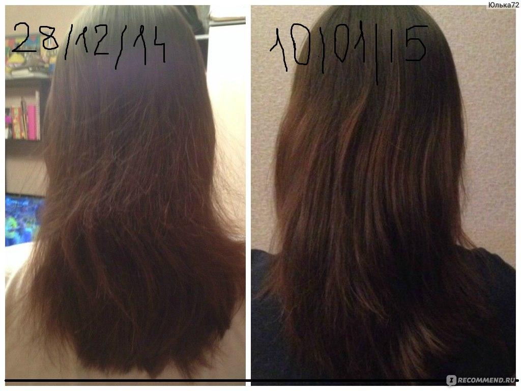 Димексид инструкция по применению для волос