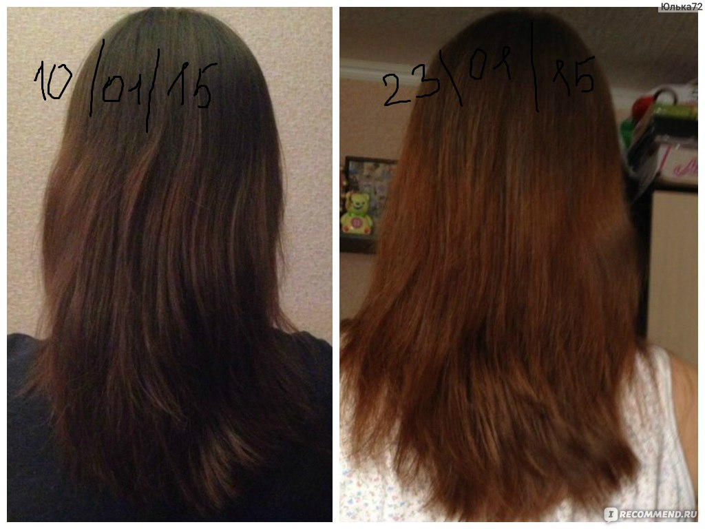 Мезороллер инструкция для волос