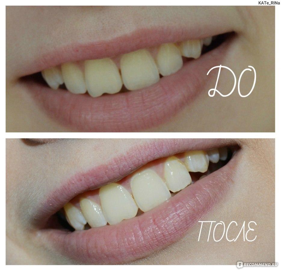 можно ли отбелить зубы перекисью водорода отзывы