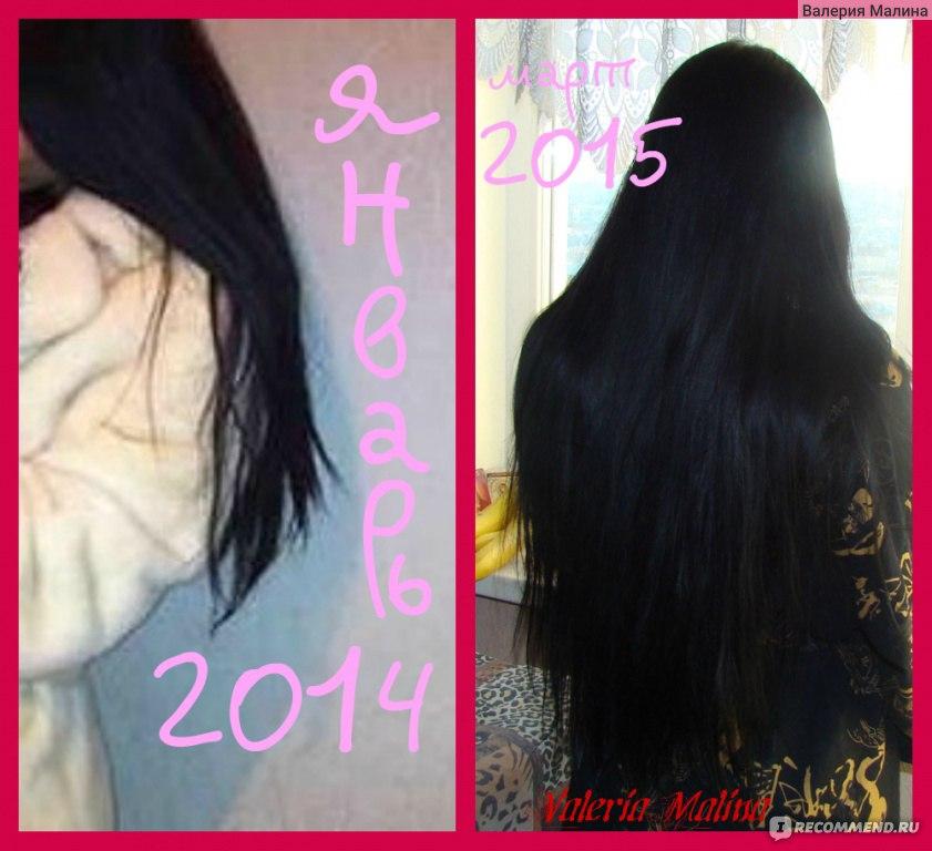 Как отрастить волосы быстро в домашних условиях  68