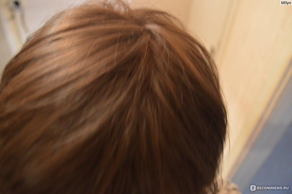 На какие гормоны сдавать кровь при выпадении волос