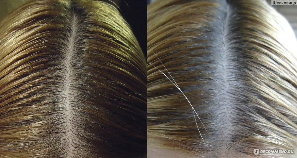 Как сделать волос менее жирным 280