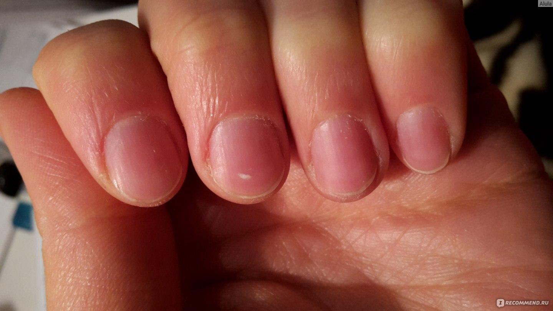 Как отрастить длинные ногти быстро в домашних условиях