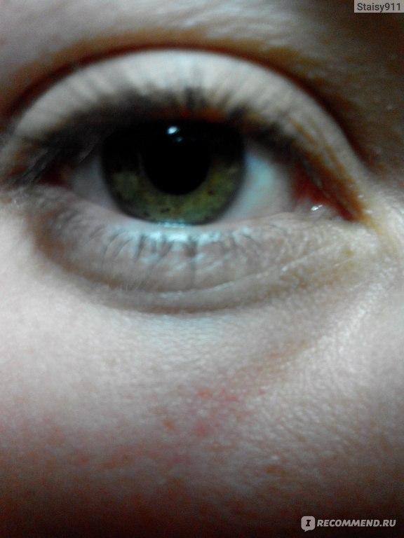 морщины под глазами в 23 года фото NORVEG разрабатывается, исходя