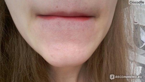 Кровяной сосуд на губе