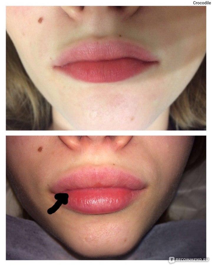Курсы увеличения губ гиалуроновой кислотой