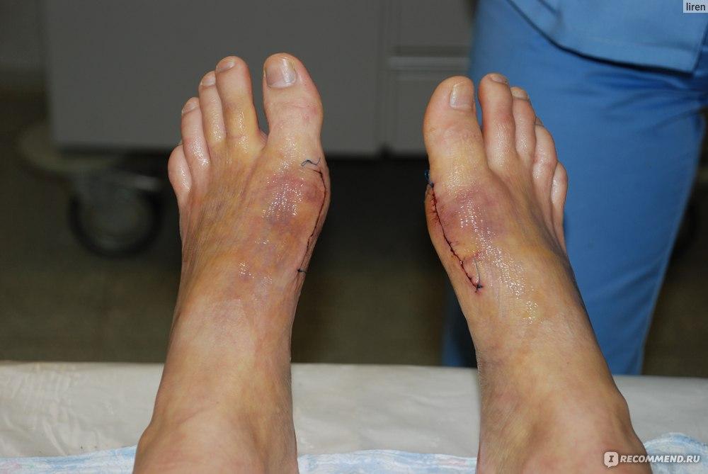Неожиданно встал на людях ноги кость фото 565-943