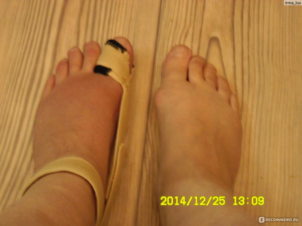 Операции по удалению косточки на большом пальце ноги