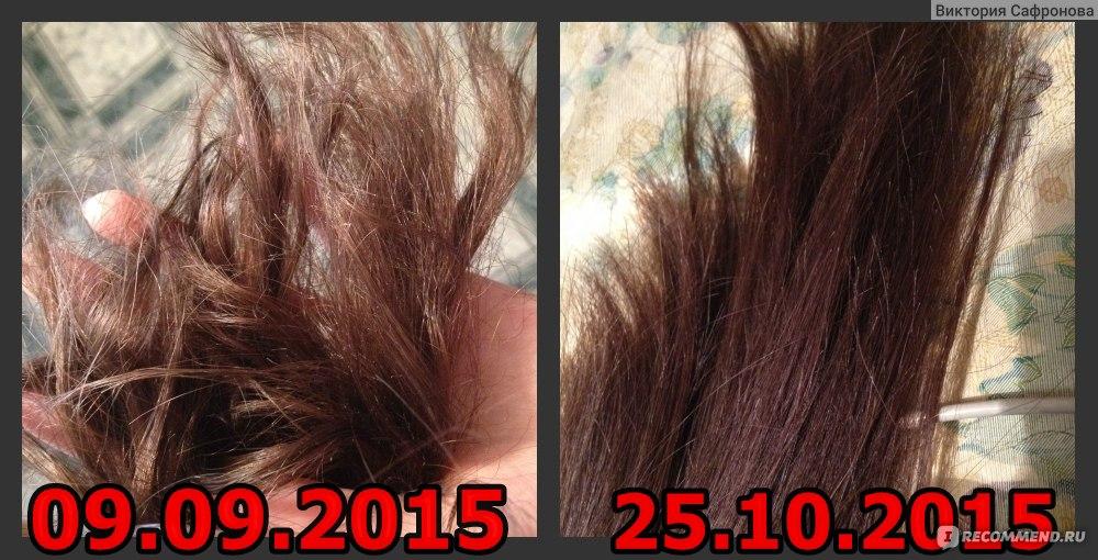Если волосы не выпадают вообще