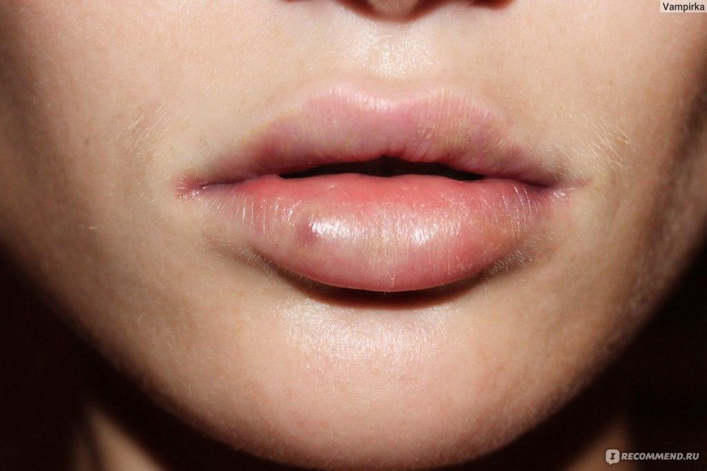 Как сделать чтобы губы распухли