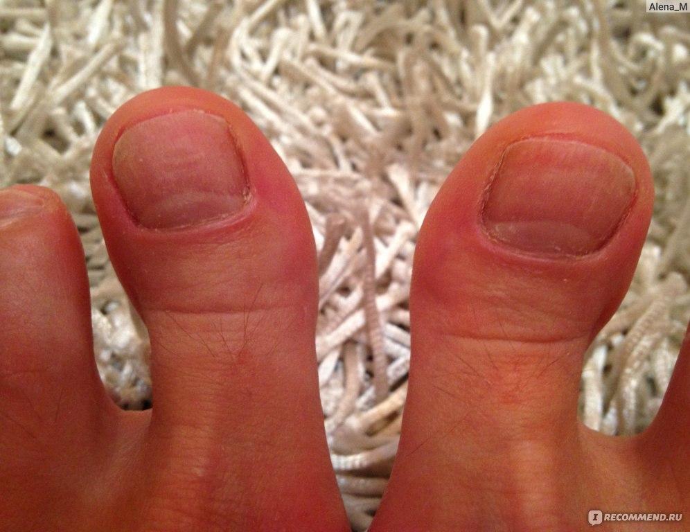 Как выдечить грибок ногтей