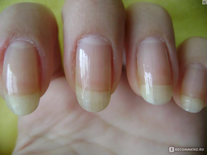 Как сделать так чтобы ногти были твердыми