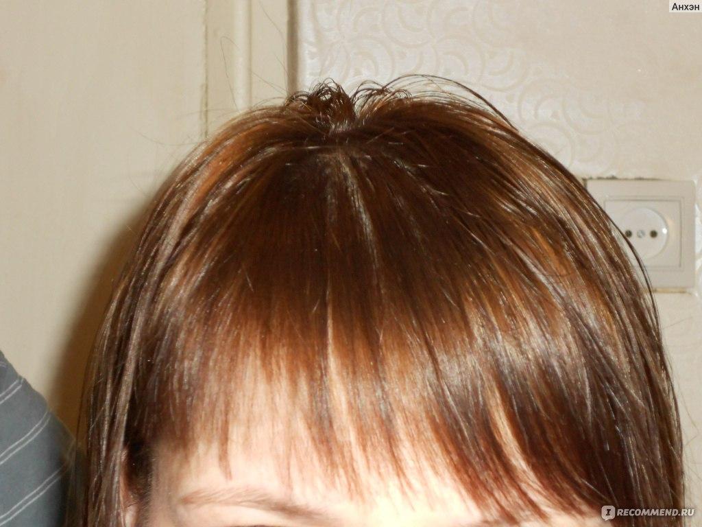Красные пятна на коже головы и выпадают волосы