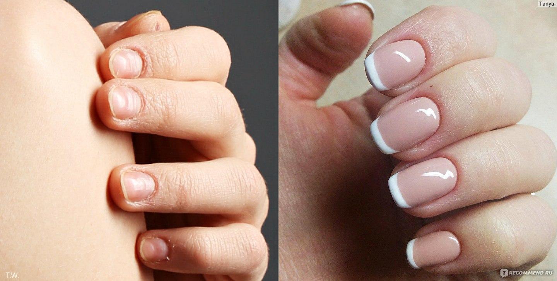 Если у вас слоятся ногти: что делать и как их лечить