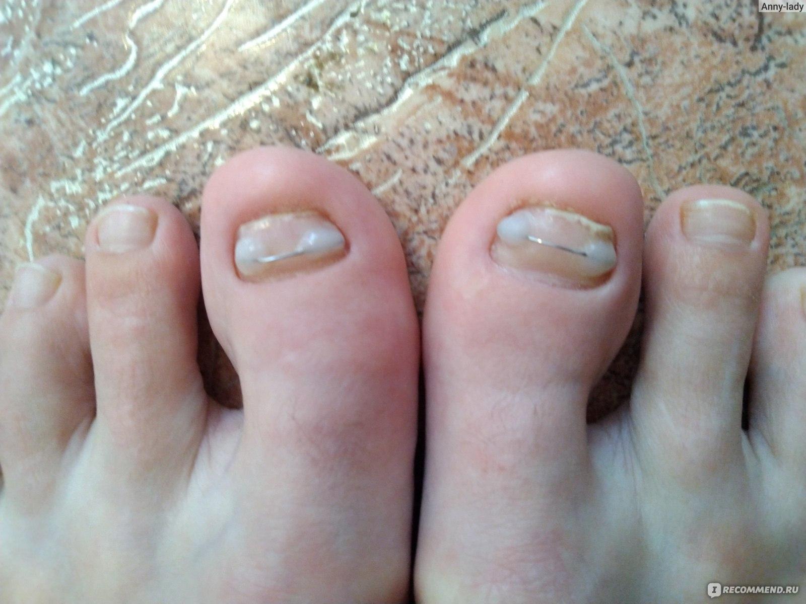 Фото отросших ногтей на ногах